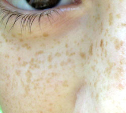 Freckles are epigenetic, meaning sunlight exposure can trigger them. Image by Loyna.